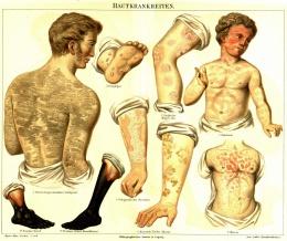 Das Ekzem und die Arthritis